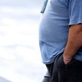 Bypass cirurgia de redução de estomago