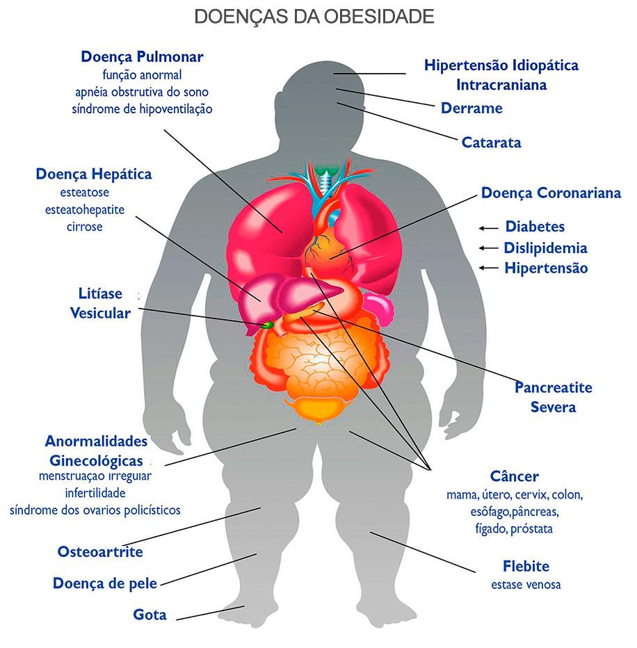 Doenças da Obesidade