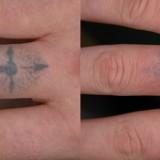 remocao de tatuagem