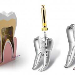 Endodontia – Tratamento de canal do dente