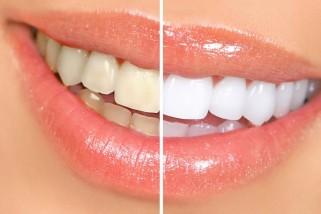 Clareamento dental Dentes mais brancos e brilhantes