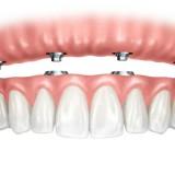 proteses-dentaria-fixas