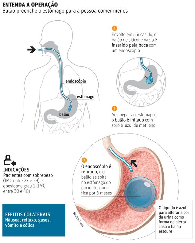Cirurgia do Balão Intragástrico - etapas da cirurgia