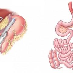 Gastrectomia Vertical