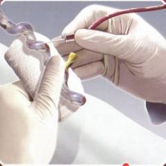 Sangue de cordão umbilical pode salvar vidas