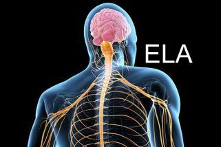 Verba é liberada para melhor tratamento do problema neurológico ELA