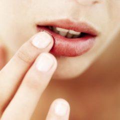 Câncer bucal atinge 14 mil brasileiros por ano