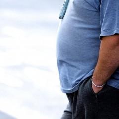 Cirurgia Bypass gástrico para redução de estômago