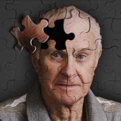 Doença de Alzheimer, o que é?