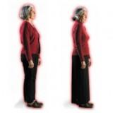 osteoporose corcunda osteoporose