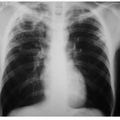 Tuberculose mata quase tanto quanto Aids em 2014