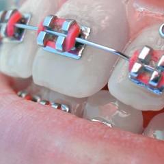 Aparelho odontológico (ortodôntico)
