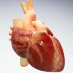 Doenças Cardiovasculares que mais matam