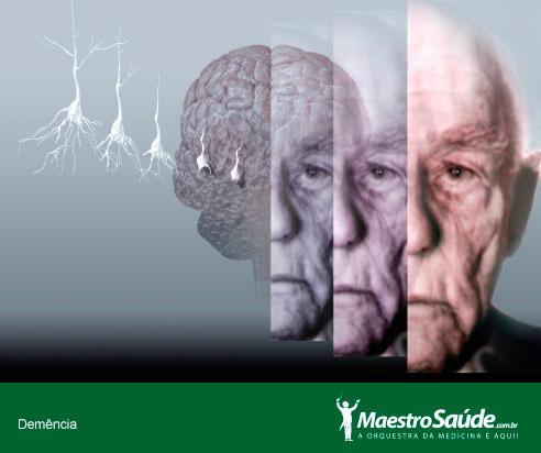 demencia1