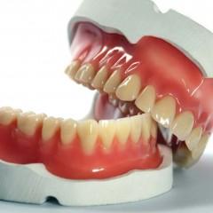 Prótese total fixa ou removível (dentadura)