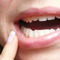 Dente do Siso, popularmente conhecido como dente do Juizo