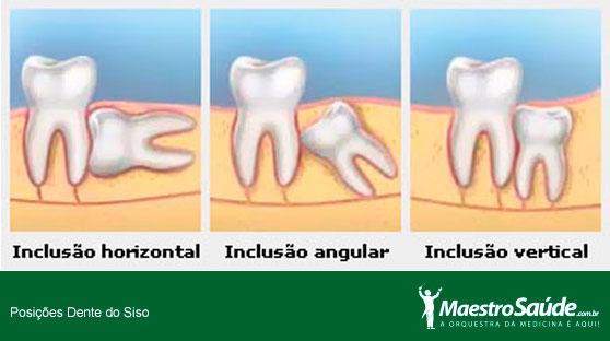 dente-siso1
