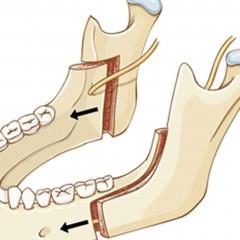 Distração Osteogênica