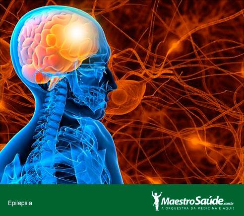 epilepsia-2
