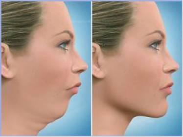 Antes e depois da Cirurgia Ortognática