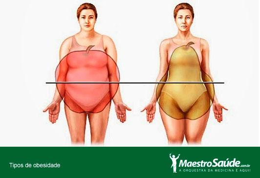 tipos-de-obesidade2