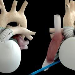 Coração artificial