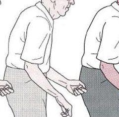Pesquisas sobre Parkinson parecem ter encontrado um melhor tratamento junto a importante gene da doença