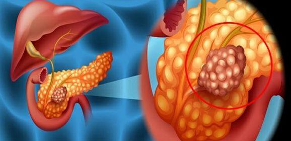 Câncer de Pâncreas – Tratamento novas possibilidades