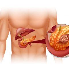 Câncer de Pâncreas, seu início pode ter sido descoberto