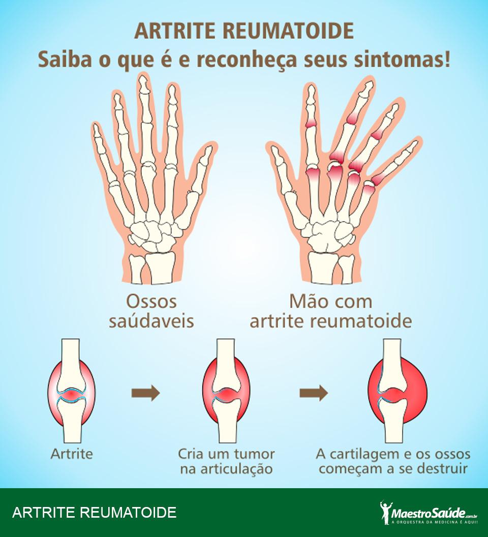 Artrite reumatoide linee guida pdf