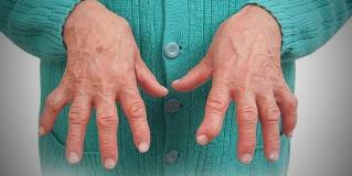 Artrite Reumatoide – Doença atinge articulações e Tratamentos buscam solucionar os sintomas