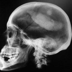 Bactérias se desenvolvem em próteses de crânio