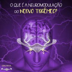 Tratamento da Enxaqueca com Neuroestimulação