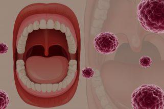 Câncer bucal, prevenção