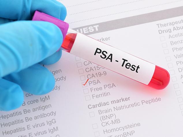 exame da prostata psa