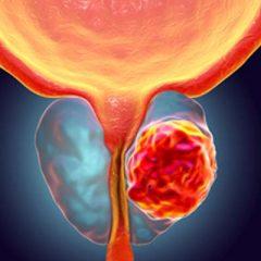 Câncer de próstata, Diagnóstico com a Ressonância Magnética