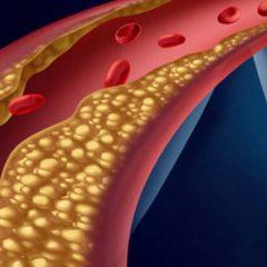 O que é dislipidemia infantil?
