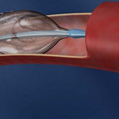 Aterectomia rotacional
